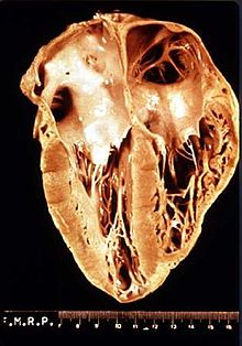 Heart_pathology_Chagas_disease